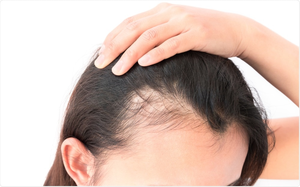 Best Way to Find The Best Hair Loss Treatment